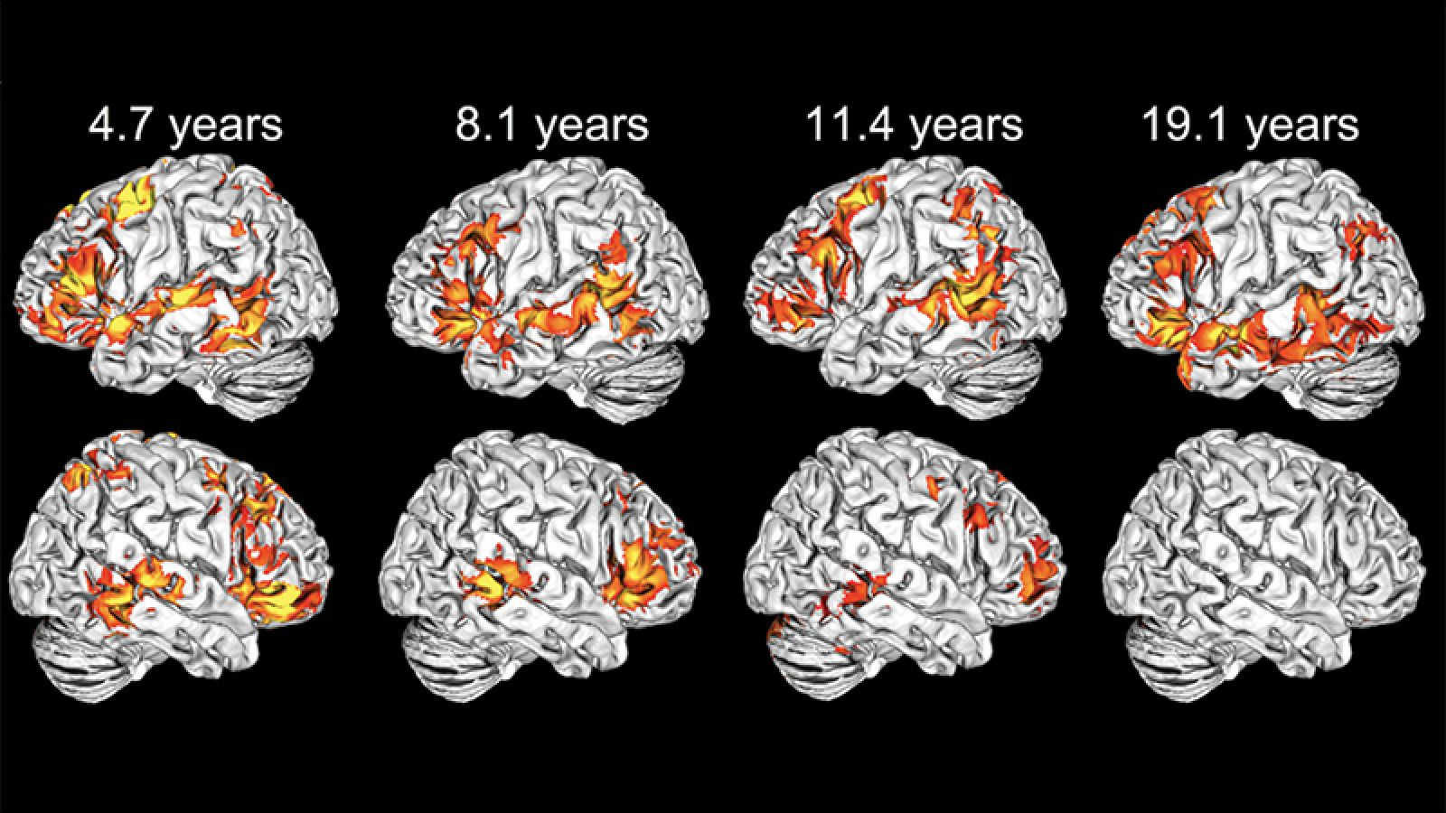 Illustration of eight brains showing how left-hemisphere language areas is evident in the youngest children declines over age from 4.7 years to 8.1 years to 11.4 years to 19.1 years of age