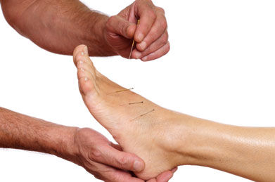 A photo of hands putting acupuncture needles into a foot.